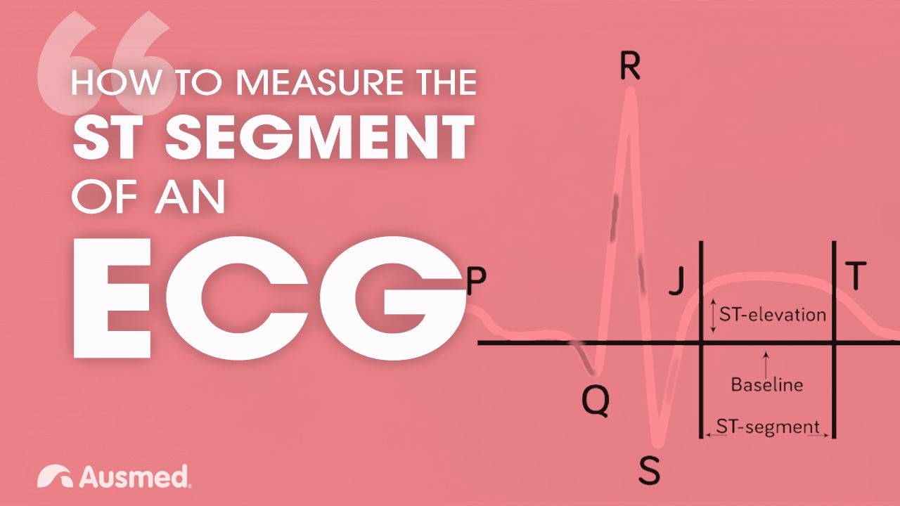 Cover image for article: How to Measure the ST Segment of an ECG
