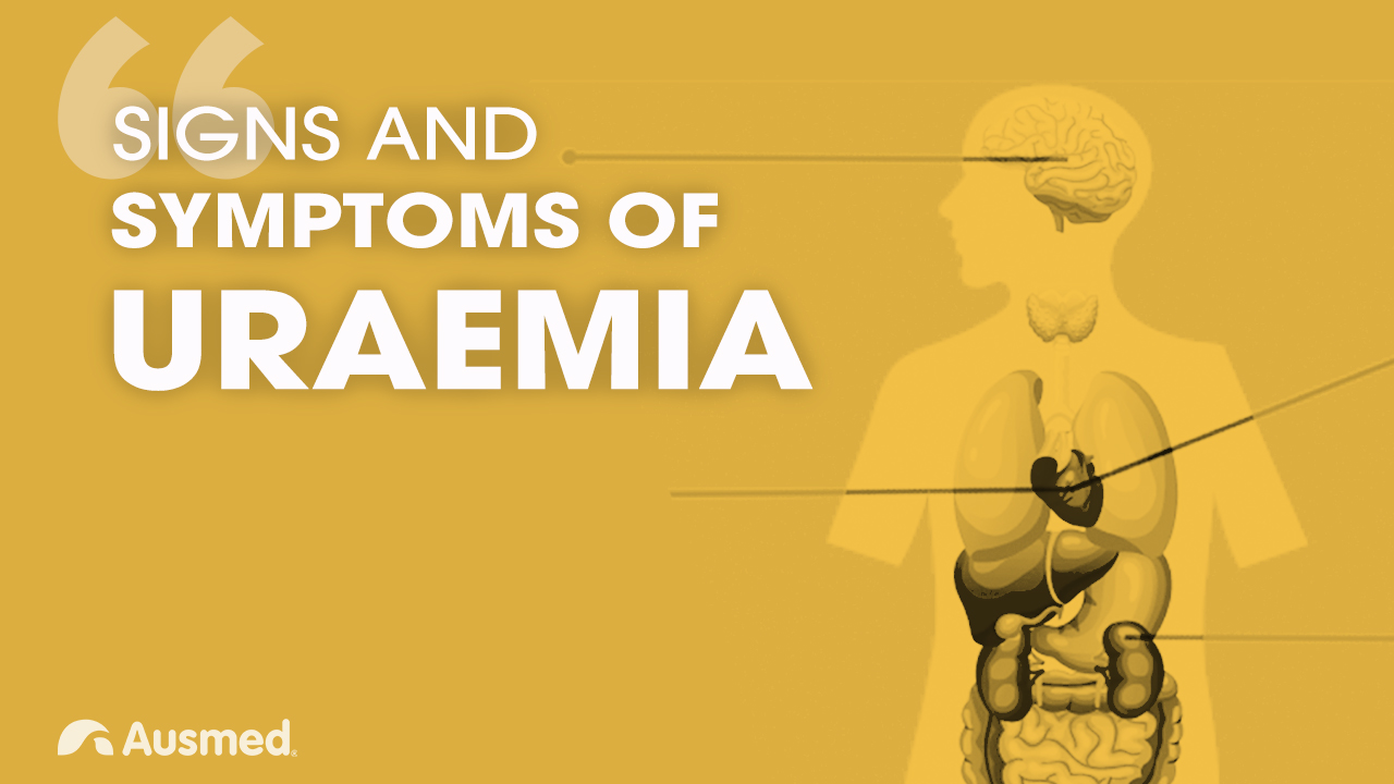 Image for Signs and Symptoms of Uraemia