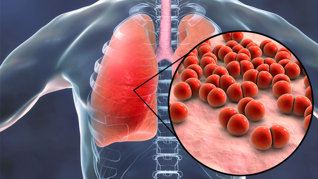 Image for Pneumonia Explained