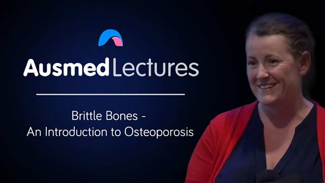 Image for Brittle Bones - An Introduction to Osteoporosis