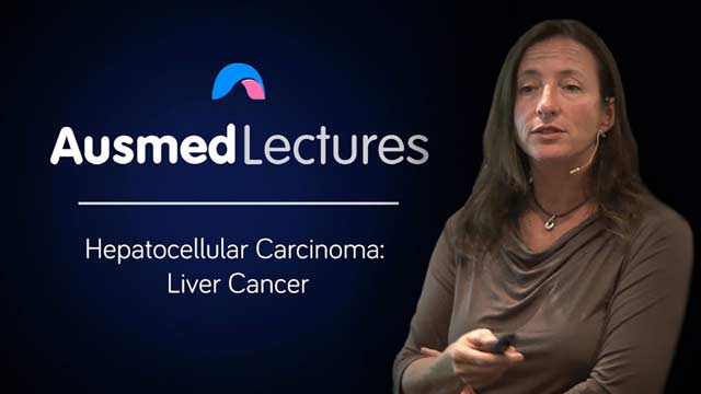 Image for Hepatocellular Carcinoma: Liver Cancer