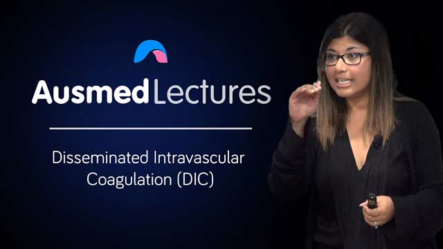 Image for Disseminated Intravascular Coagulation (DIC)